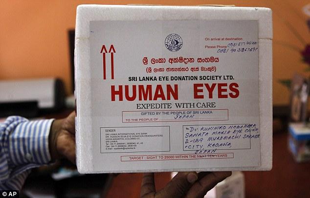 سری لنکا میں ہر 5 میں سے ایک شہری زندگی ہی میں اپنی آنکھیں عطیہ کر دیتا ہے