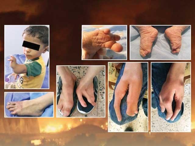 جنگ اپنے پیچھے مختلف النوع زہربھری آلودگی چھوڑ گئی ہے۔ فوٹو فائل
